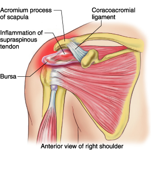 Tendonitis of the Rotator Cuff